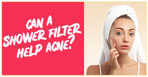 Can A Shower Filter Help Acne?